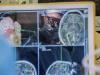 علماء ينجحون في تحويل موجات دماغ مشلول إلى كلام